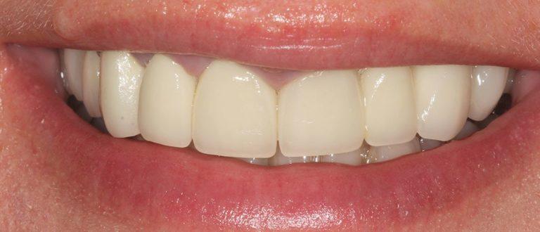 dental smile makeover in dartford