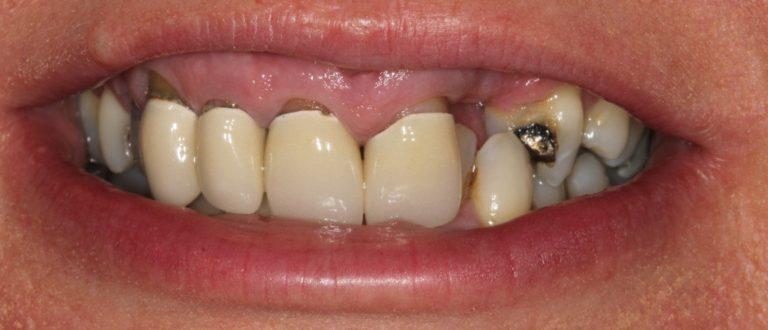 greenhithe dentist smile makeover