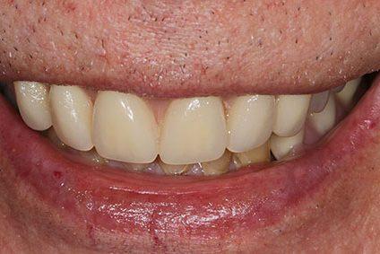 John after smile makeover at Dental Beauty Greenhithe in dartford